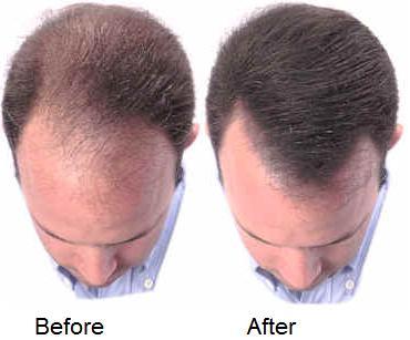 Hair loss propecia reviews